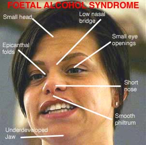 Fetal alcohol syndrome adults