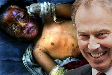 Tony Blair Iraqi Child