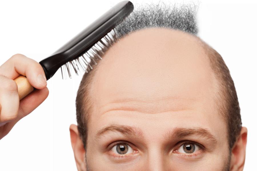 bald-hair-pubic-cure.3png